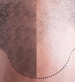 autotrapianto capelli