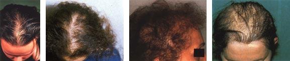 Alopecia androgenetica femminile: scala di Ludwig.