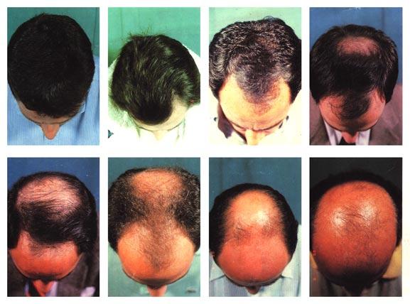 Alopecia androgenetica maschile: scala di Hamilton.