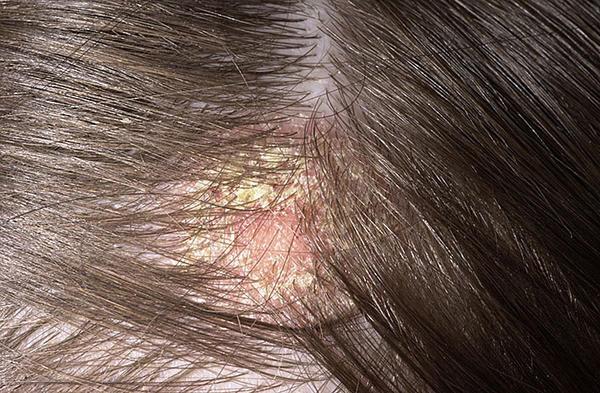 dermatite seborroica rimedi