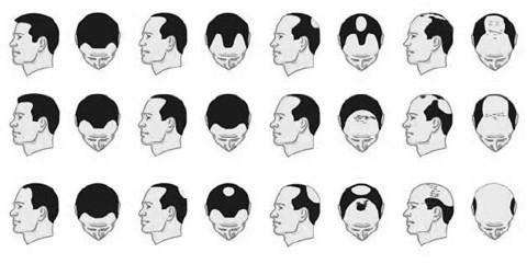 Tipi di Alopecia