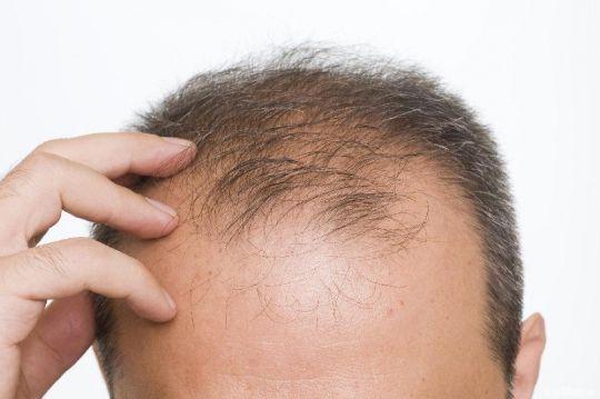 alopecia seborroica