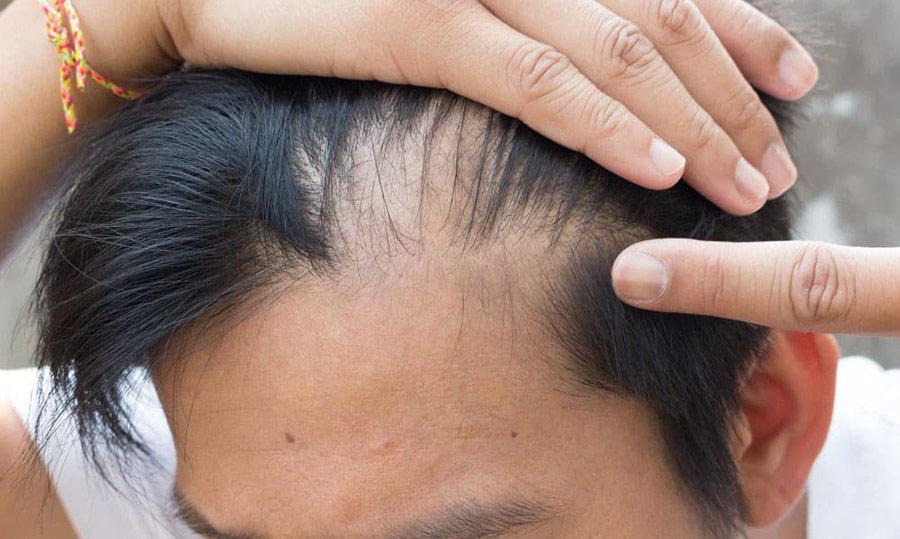 calvizie sintomi e cura