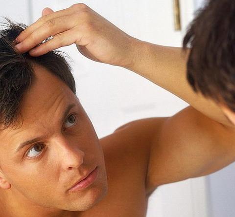 Calvizie Alopecia Androgenetica Uomo