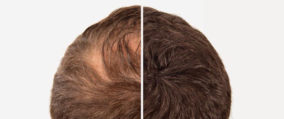 rimedi perdita di capelli