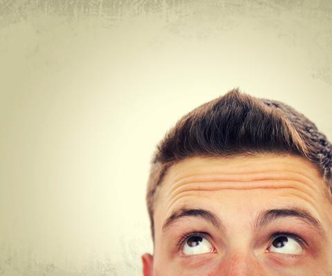 iperidrosi capelli