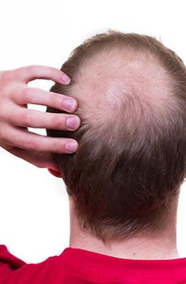 problemi cuoio capelluto