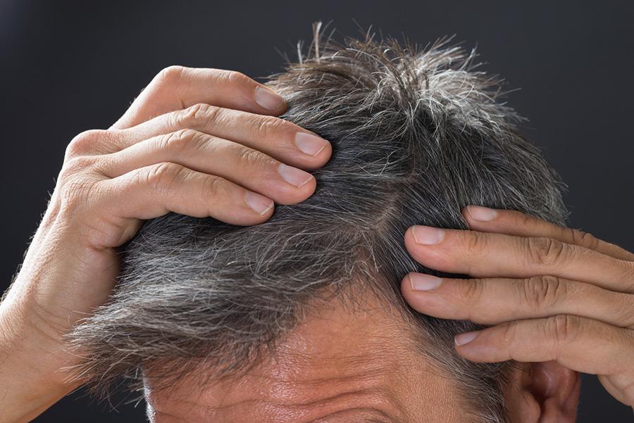 invecchiamento capelli