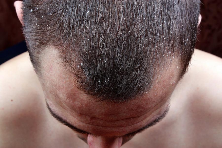 capelli grassi cause e rimedi