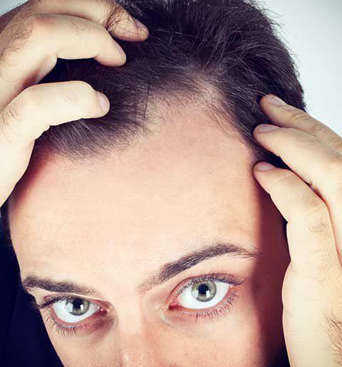 diradamento capelli stempiatura