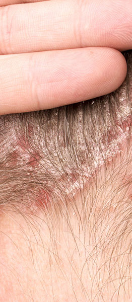 rimedi naturali dermatite seborroica