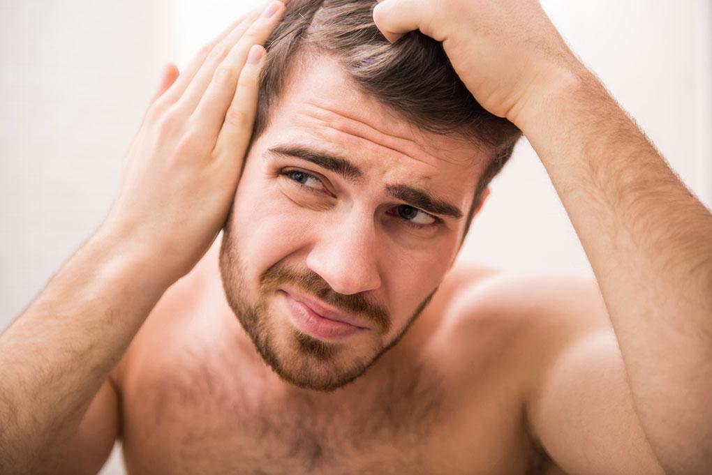 caduta-dei-capelli