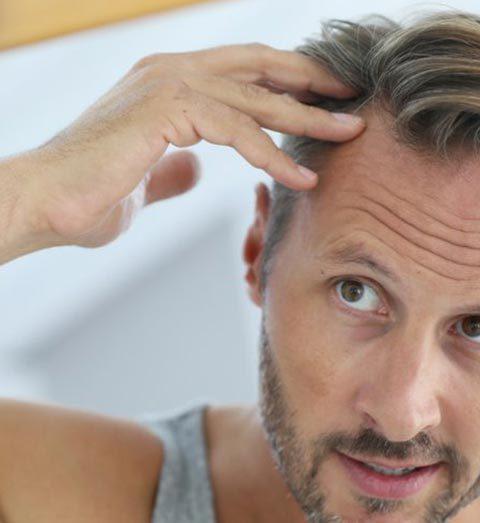 Perdita capelli quando preoccuparsi uomo